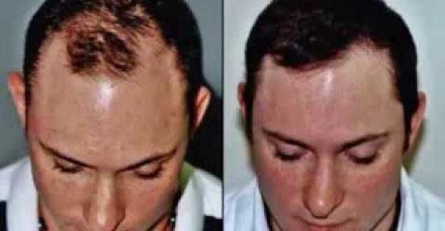 Saç Çıkarmanın Formülü Varmı? Nasıl saç çıkartabilirim?