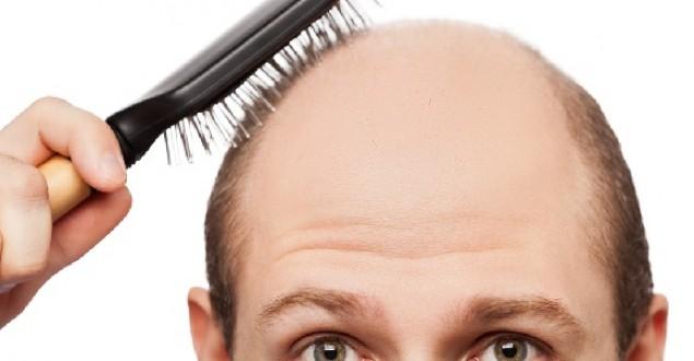 Saç dökülmesi için hangi doktora gidilir? Hangi bölüm doktoru bakar