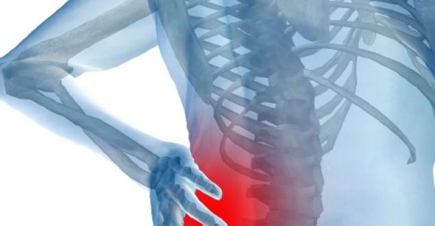 Bel ağrısına ne iyi gelir? Bel ağrısı nasıl geçer