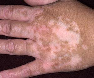 Deride-renk-kaybina-neden-olan-hastalik-sedef-degil-vitiligo-adli-baska-bir-cilt-hastaligidir