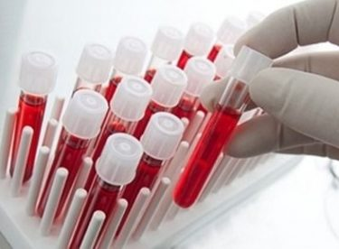 Kan grubuna göre kişilik analizleri ve hastalıklar