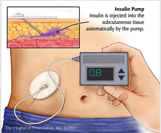 InsulinPump