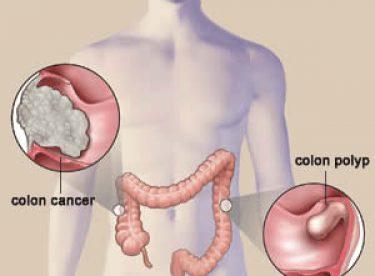 Kolon Kanserini Önlemenin Yolları