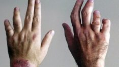 Psoriatik Artrit Nedir? Psoriatik Artrit tedavisi