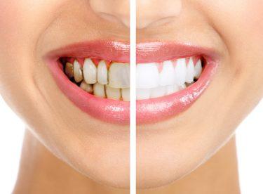Çocuklarda Diş Bakımı, Diş ipi kullanımı, Hamilelikte dişler