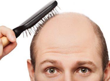 Saç dökülmesine hangi bölüm bakar