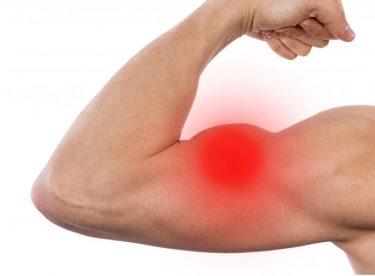 Kas ağrısı için hangi doktora gidilir? Kas ağrısına hangi bölüm doktoru bakar