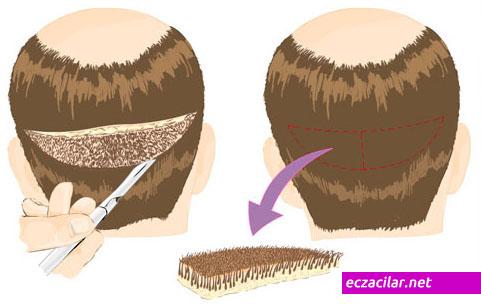 saç ektirme-saç ekimi